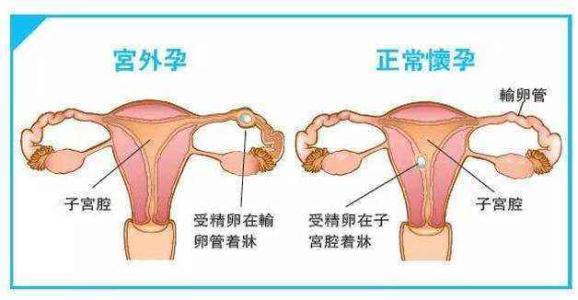 兴义宫外孕手术费用