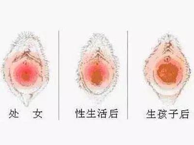 兴义修复处女膜哪家医院可以做