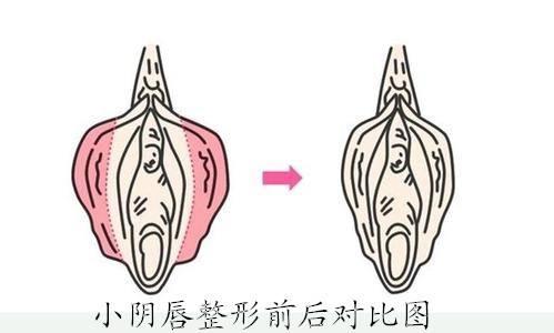 兴义做阴唇缩小手术多少钱