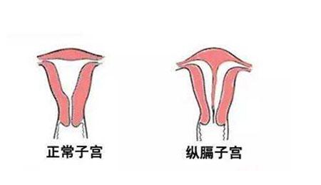兴义女性患宫颈性不孕的原因有哪些