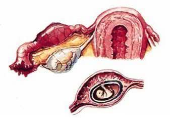 兴义女性得宫外孕的几种常见表现