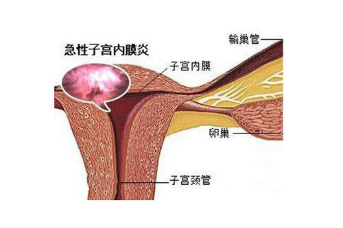 兴义妇女子宫内膜炎如何检查