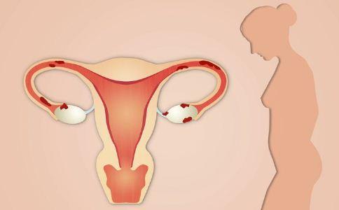 兴义妇女宫外孕会有什么特征